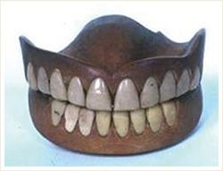 総入れ歯の歴史