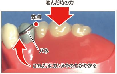 保険の入れ歯について