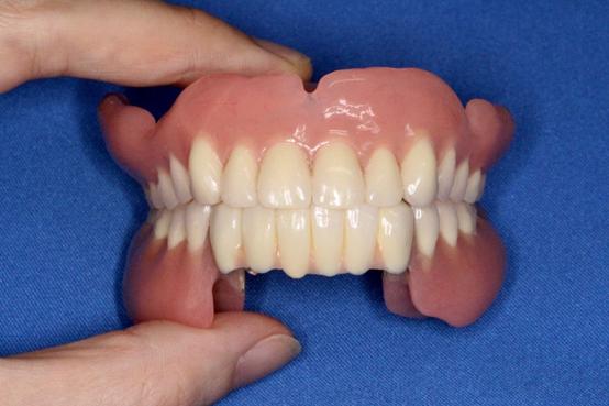 上下のドイツ式入れ歯の例