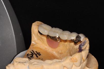 入れ歯のレバーを閉めた後