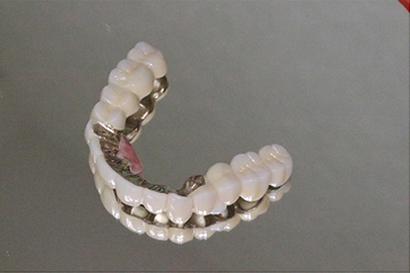 ドイツ式入れ歯(取り外し式差し歯タイプ)